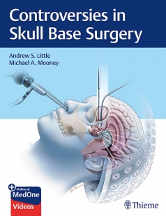View Details for Controversies in Skull Base Surgery